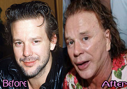 mickey rourke plastic surgery photo - 1