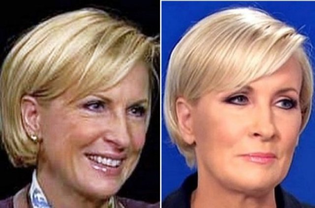 mika brzezinski plastic surgery photo - 1