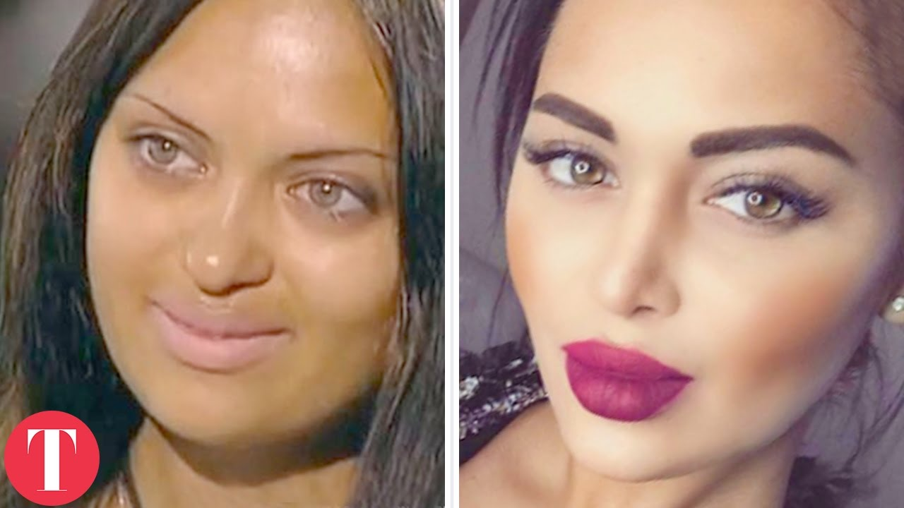 models before and after plastic surgery photo - 1