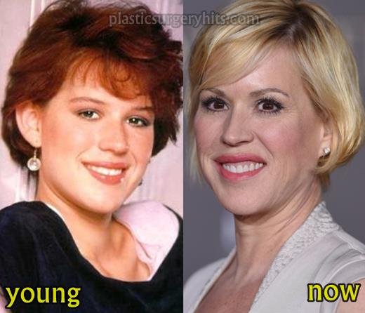 molly ringwald plastic surgery photo - 1