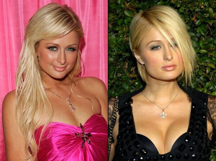 most popular plastic surgery photo - 1