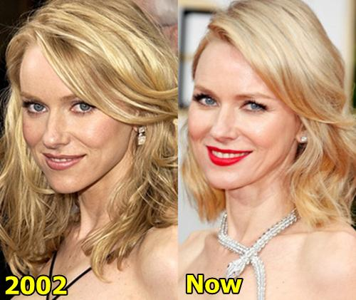 naomi watts plastic surgery photo - 1