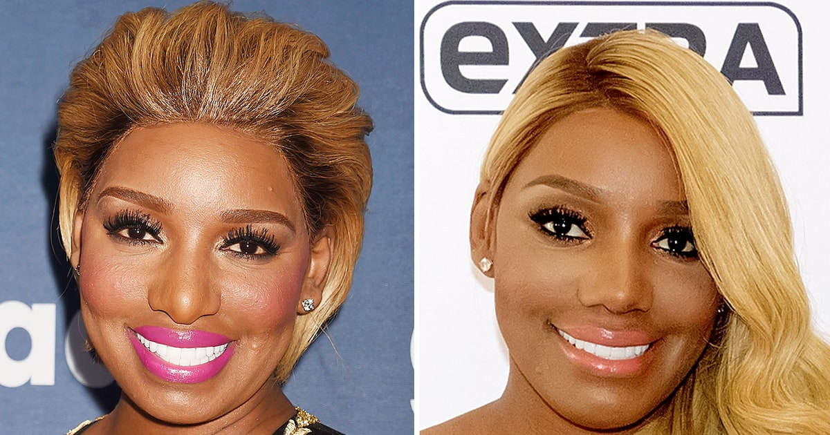 nene leakes plastic surgery photo - 1