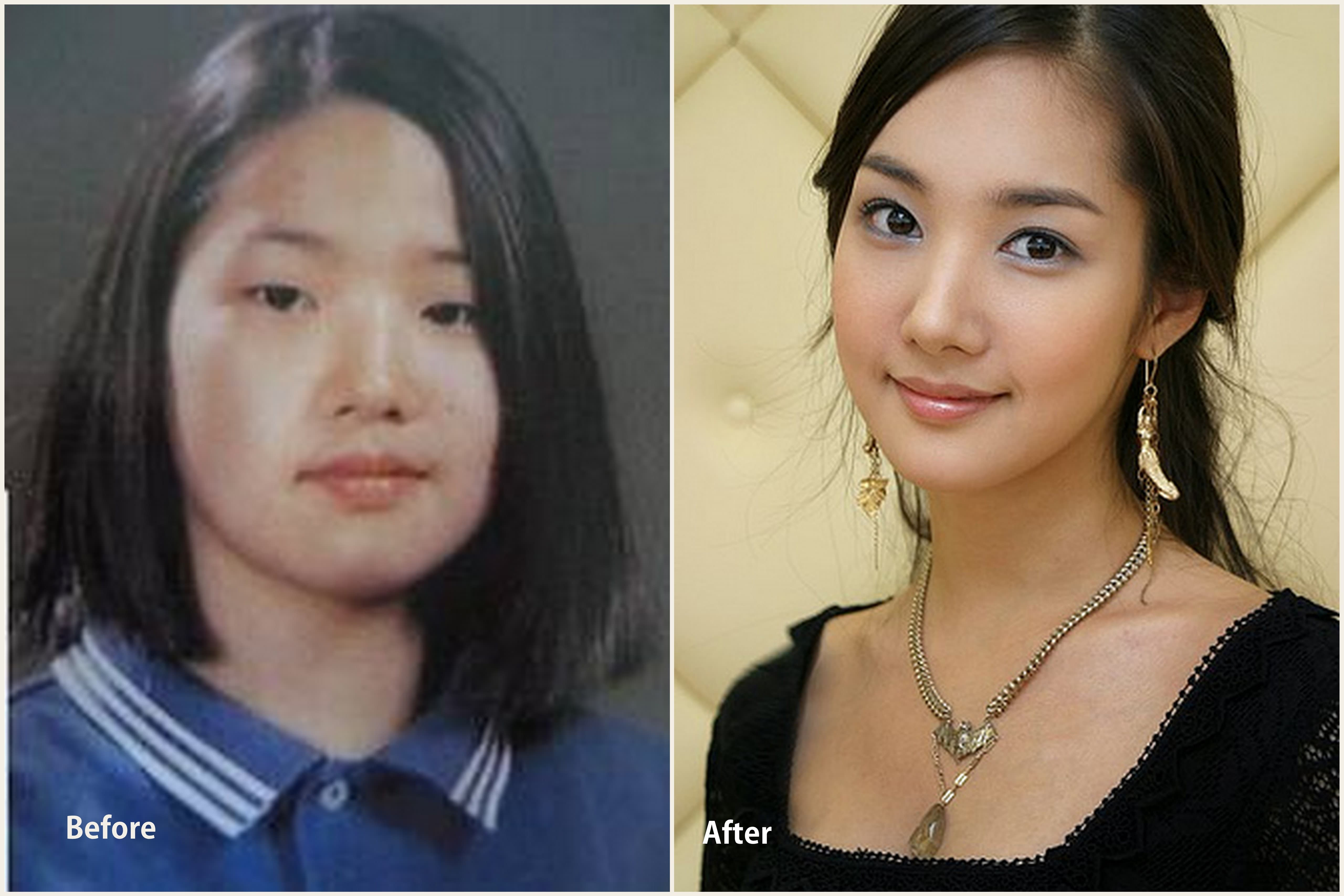 new life plastic surgery corp photo - 1