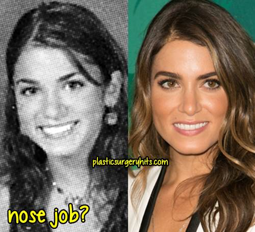 nikki reed plastic surgery photo - 1