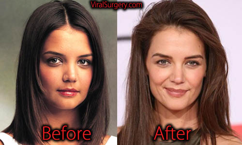 nose plastic surgery before and after photo - 1