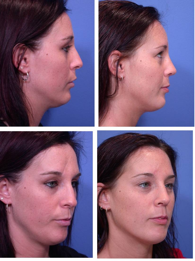 nose plastic surgery cost photo - 1