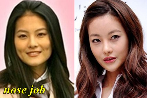oh yeon seo plastic surgery photo - 1