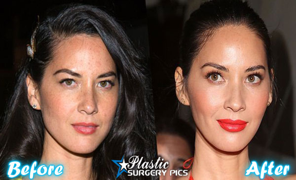 olivia munn plastic surgery photo - 1