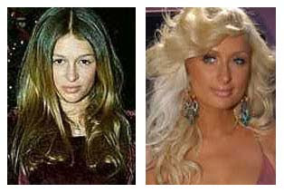 paris hilton plastic surgery photo - 1