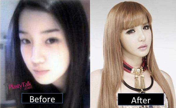 park bom before and after plastic surgery photo - 1