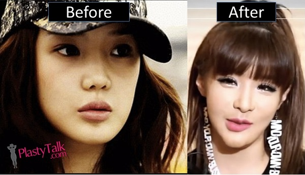 park bom plastic surgery photo - 1