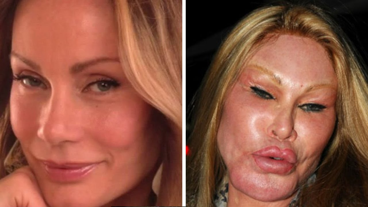 person with most plastic surgery photo - 1