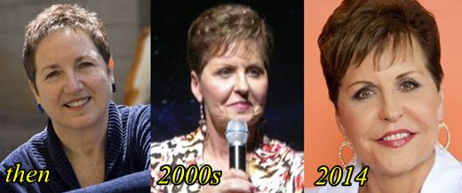 pictures of joyce meyers plastic surgery photo - 1