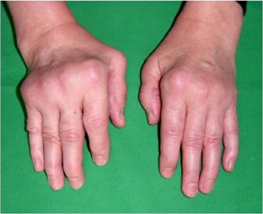 plastic and hand surgery photo - 1
