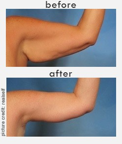 plastic surgery arms before and after photo - 1