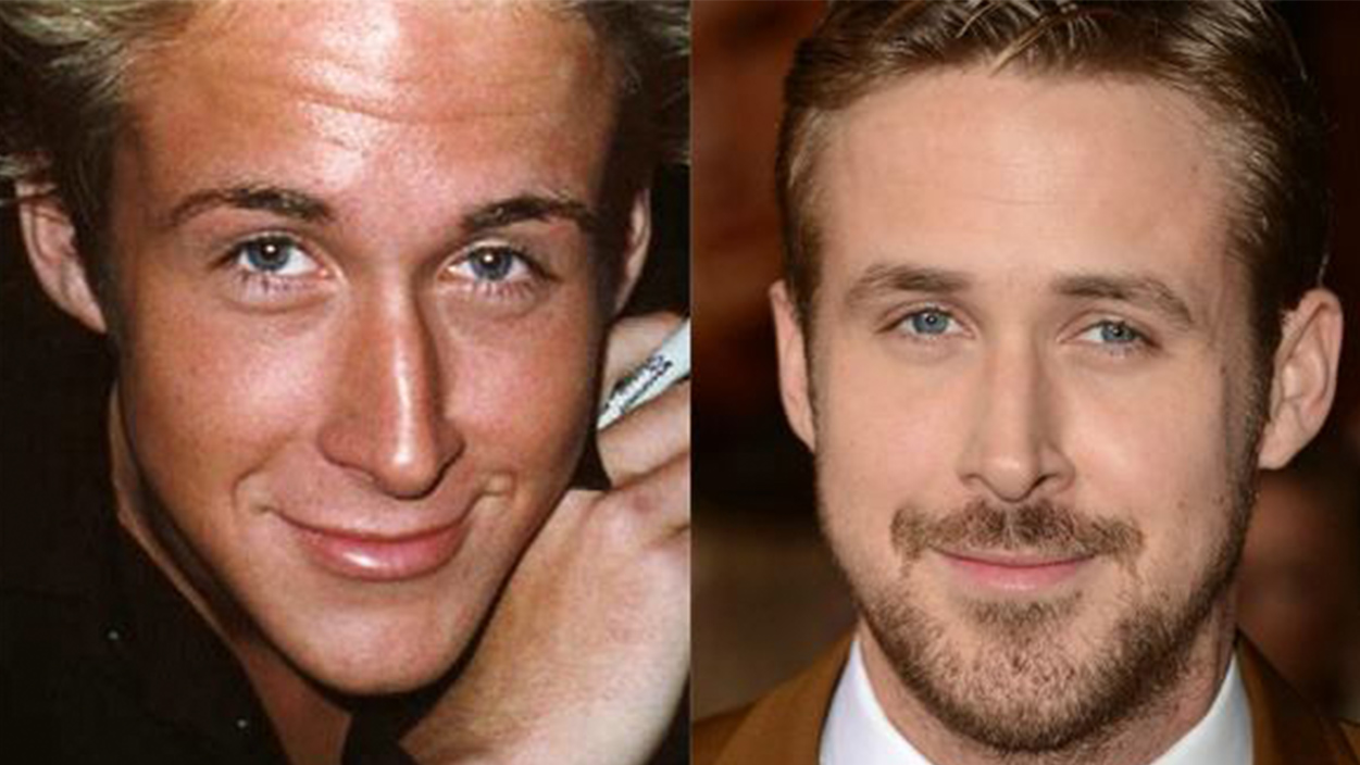 plastic surgery before and after celebrities photo - 1
