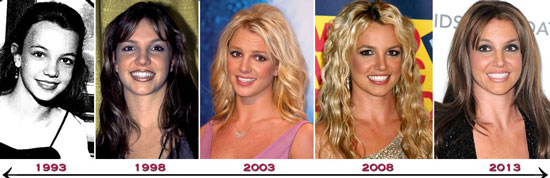 plastic surgery before and after men photo - 1