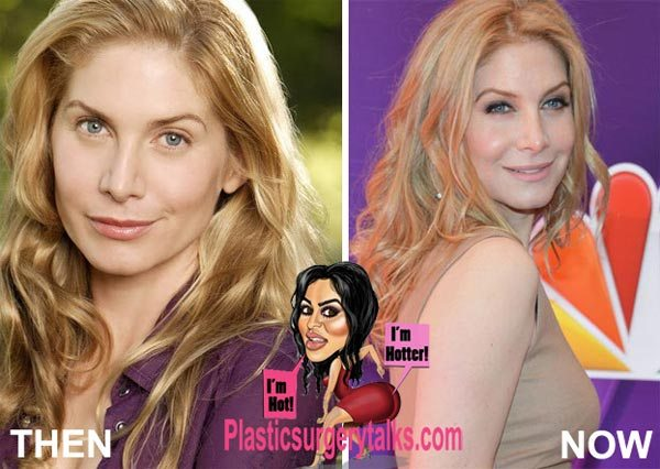 plastic surgery before and after photos photo - 1