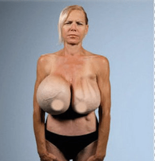 plastic surgery breast implants photo - 1