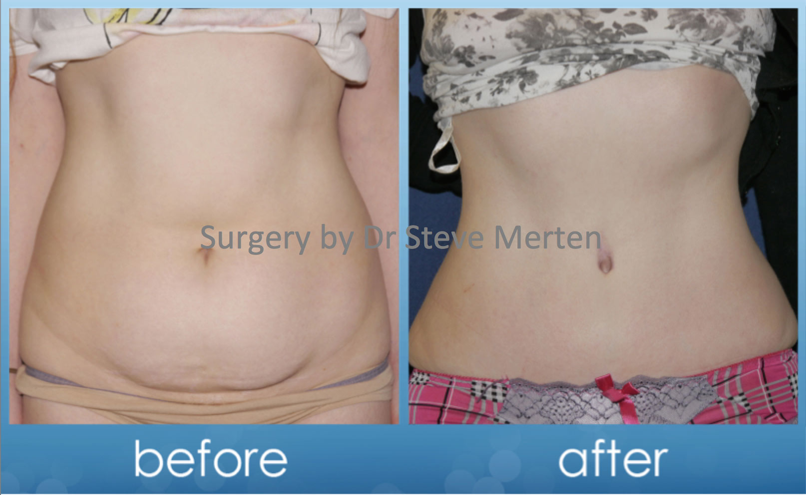 plastic surgery breast lift photo - 1