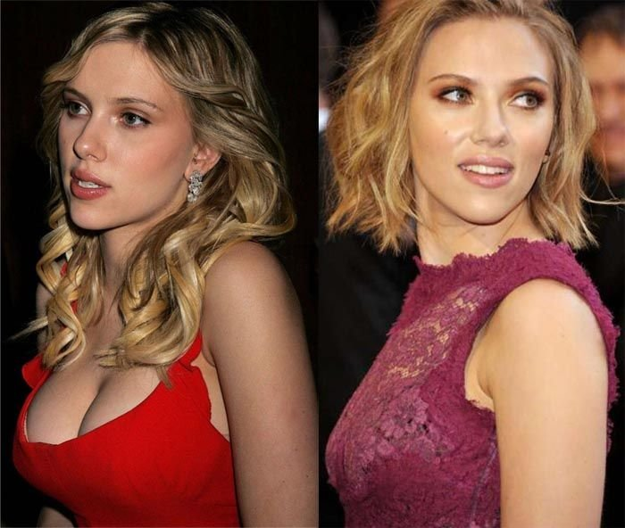 plastic surgery breast reduction photo - 1