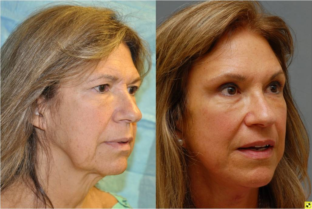 plastic surgery center of maryland photo - 1