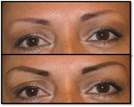 plastic surgery clearwater fl photo - 1
