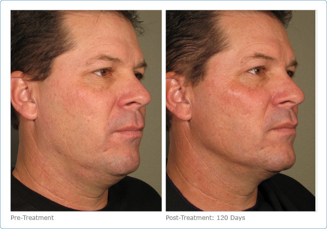 plastic surgery colorado springs photo - 1