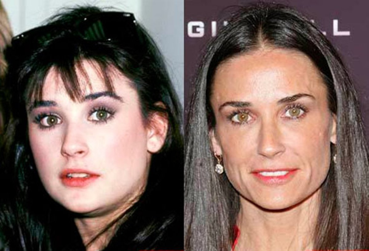 plastic surgery disasters album photo - 1
