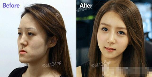 plastic surgery essay photo - 1