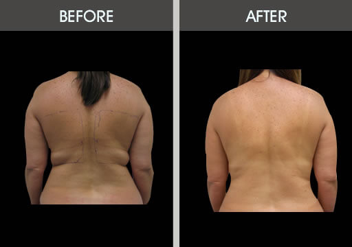 plastic surgery fat removal photo - 1