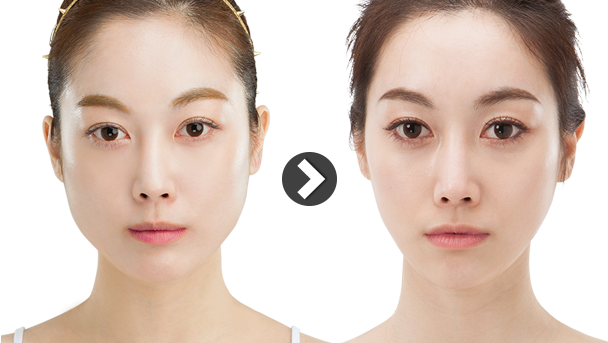 plastic surgery fat transfer photo - 1