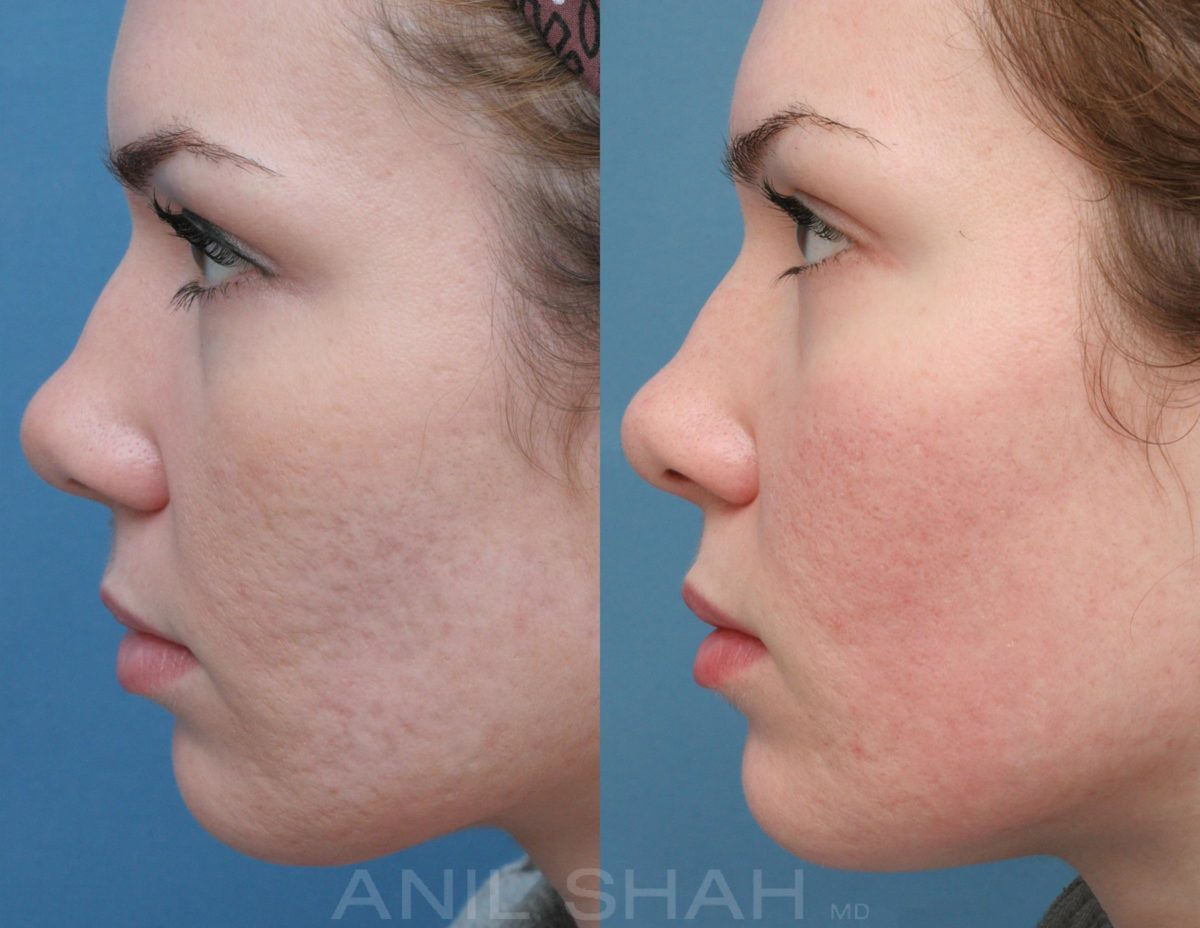 plastic surgery for acne scars before and after photo - 1