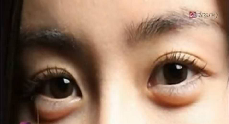 plastic surgery for eye bags photo - 1