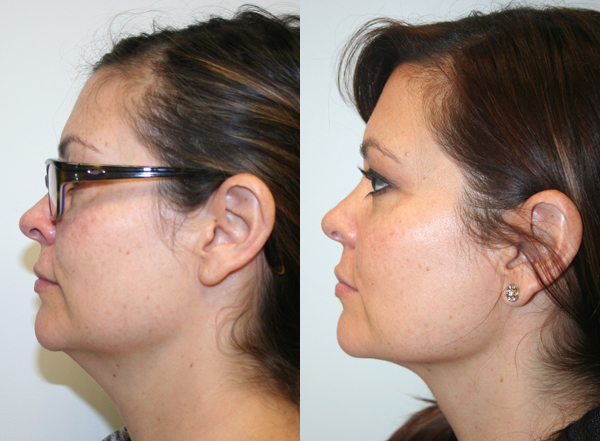 plastic surgery fort lauderdale fl photo - 1