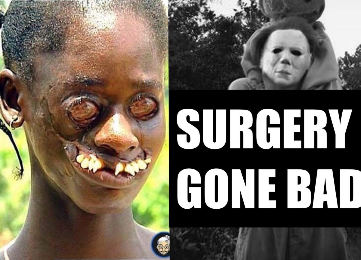 plastic surgery gone horribly wrong photo - 1