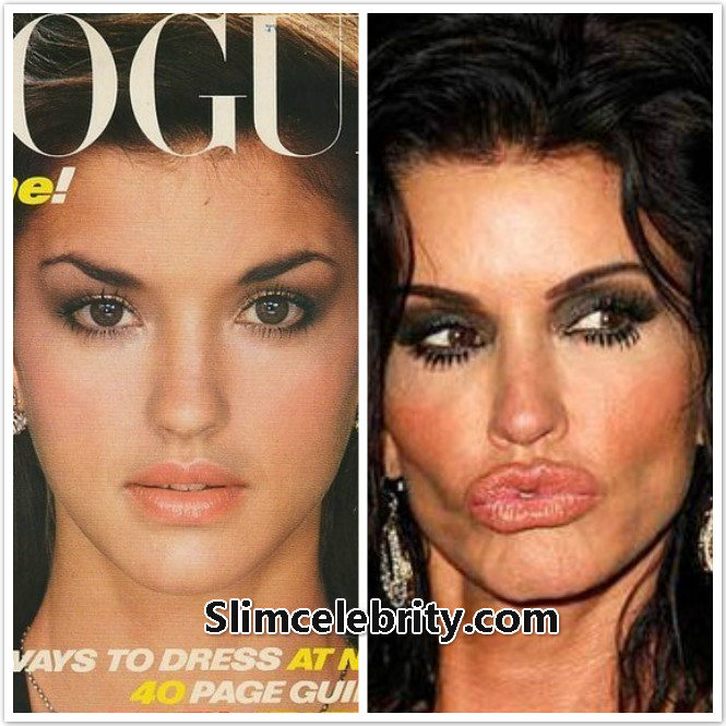 plastic surgery gone wrong before and after photo - 1