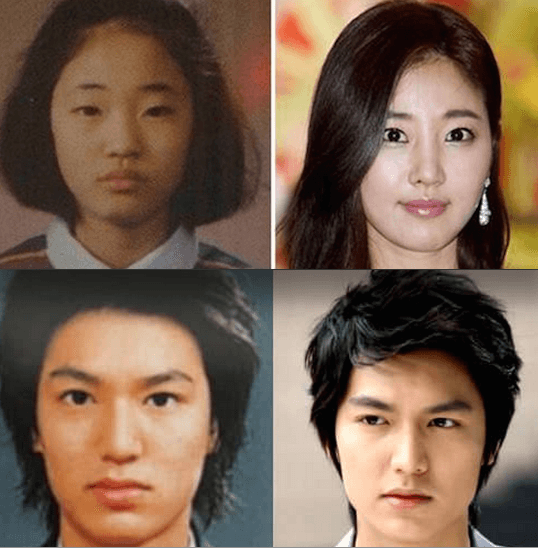 plastic surgery in korea celebrities photo - 1