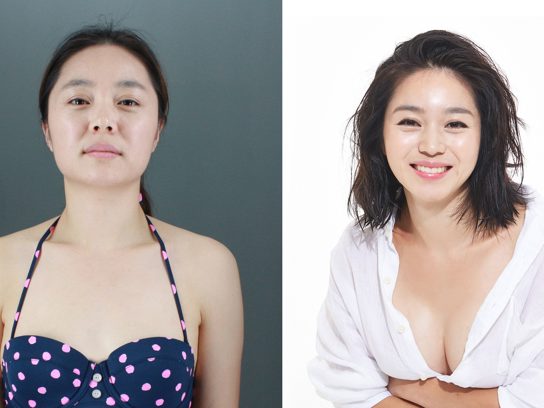 plastic surgery south korea In korea, where a beautiful face is considered a weapon to land jobs or to get ahead in your career, plastic surgery is very important but more than luxury, it has now become a necessity.