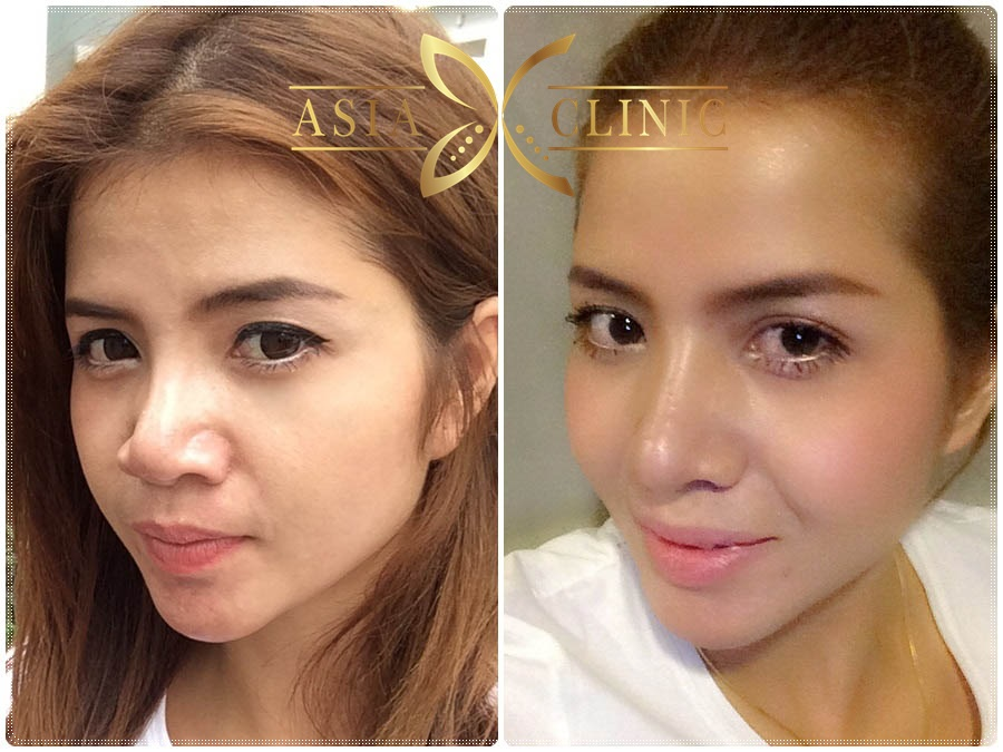 plastic surgery in thailand photo - 1