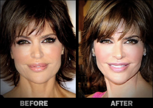 plastic surgery medford oregon photo - 1