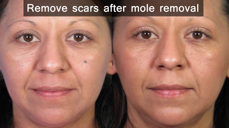 plastic surgery mole removal photo - 1