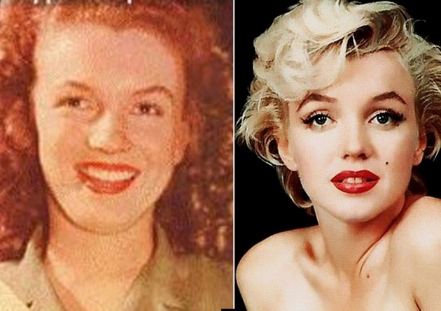 plastic surgery monroe la photo - 1