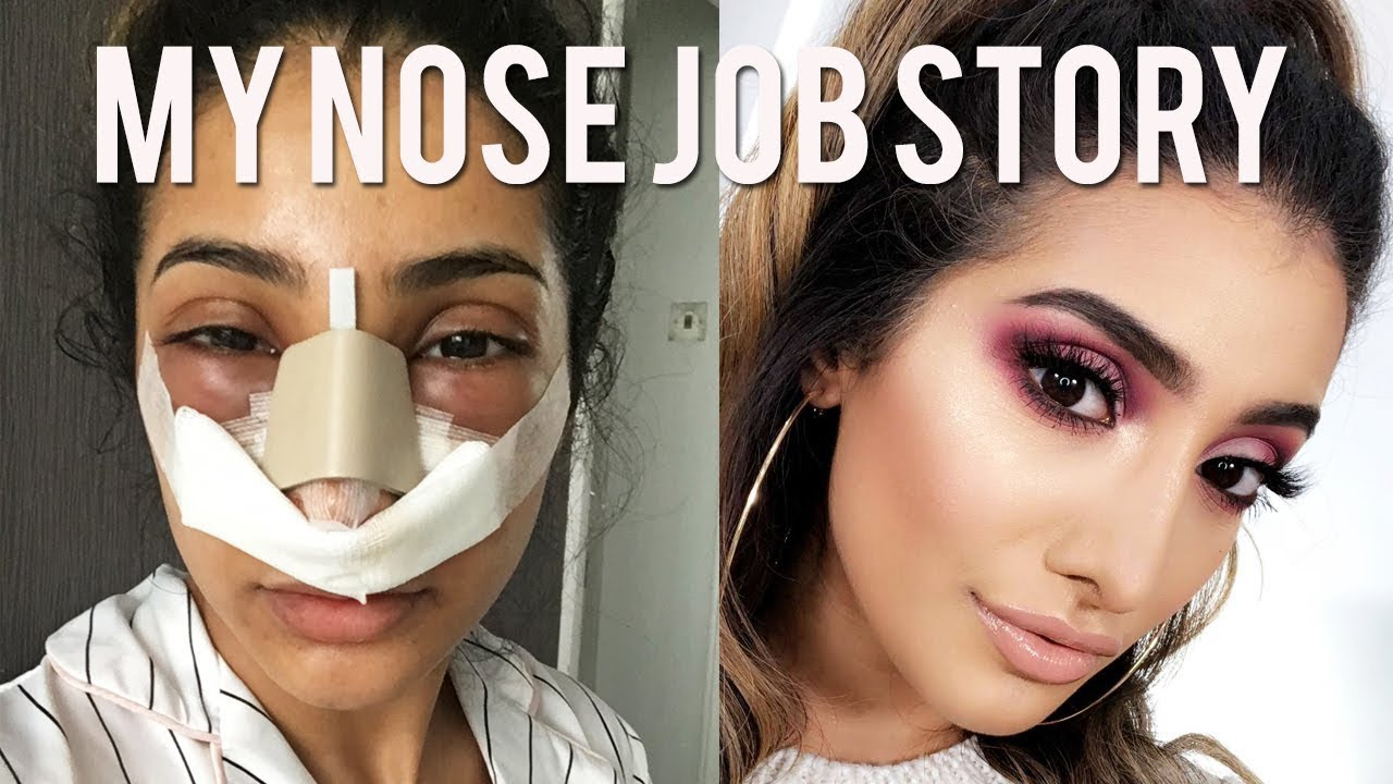 plastic surgery nose cost photo - 1