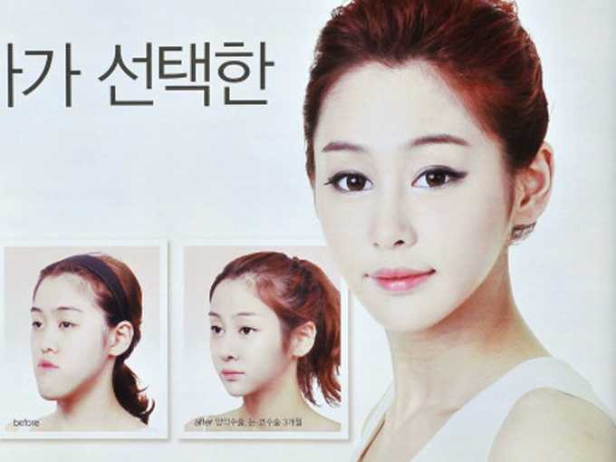 plastic surgery obsession photo - 1