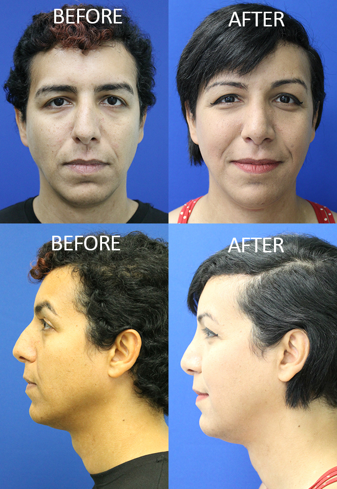 plastic surgery of palm beach photo - 1