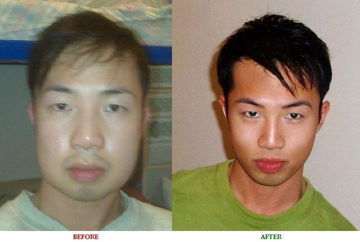 plastic surgery penile enlargement before and after photo - 1