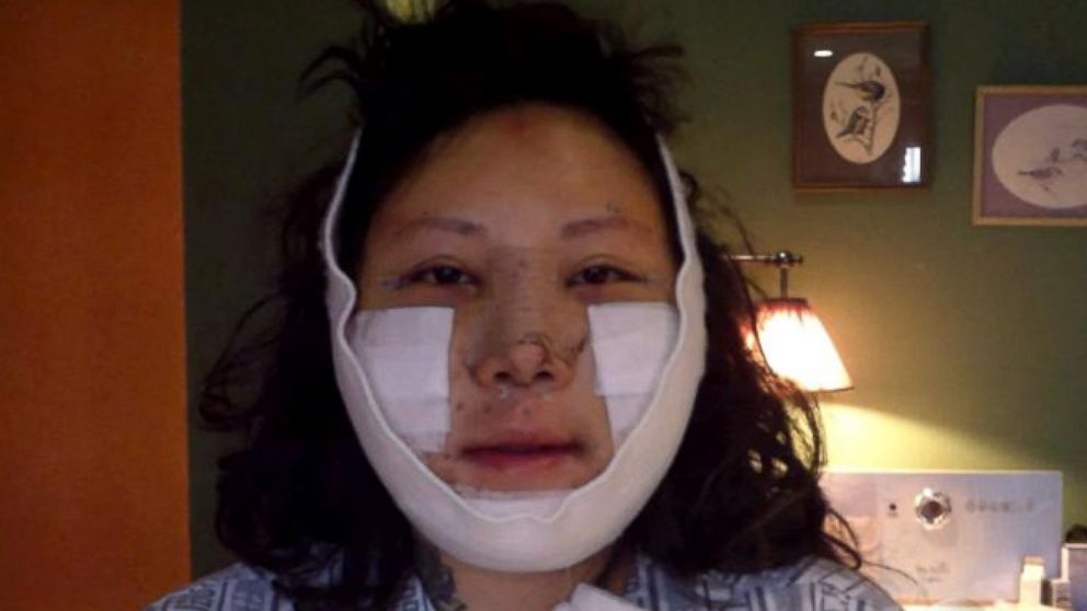 plastic surgery recovery photo - 1