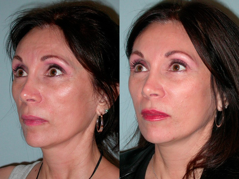 plastic surgery santa rosa photo - 1